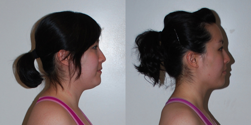 Garcinia cambogia loss funziona photo 10